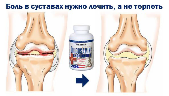 лекарства для смазки суставов